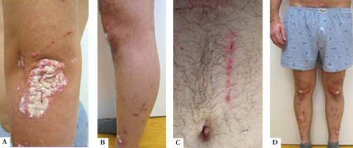 (a), (c-d): Psoriasis patches on the elbow and the legs,(c) Koebner phenomenon with linear psoriasis patch on the abdomen, (c-d): alopecia areata of the lower limbs