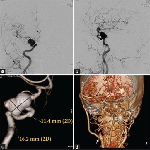 (a-c) DSA images of a right transitional aneurysm (cavernous and supraclinoid) of the internal carotid artery. (d) CTAngioram (post operative) showing a patent high flow saphenous vein graft from the cervical ICA to middle cerebral artery. The ICA stump and the non filling of the aneurysm are also visible