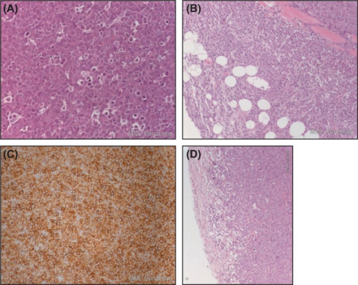 "Tumor panels from Z138 tumor-bearing mice showing mantle cell NHL of Z138 human cell line: (A) (× 400 hematoxylin and eosin [H&E]) shows ""starry sky"" pattern as a result of apoptosis and phagocytosis; (B) (× 100 H&E) highlights infiltrative growth into surrounding subcutaneous tissue (muscle and fat), lacking distinct encapsulation (left; #101), respectively, with formation of a thin tumor-surrounding capsule of tumors of vehicle-treated mice (right, #102); (C) (× 200 CD20) shows strong membrane-bound CD20 expression in almost all MCL cells; (D) (× 100 H&E) demonstrates improved demarcation with increased capsule thickness after treatment with obinutuzumab (GA101) and bendamustine (left, #501) or after treatment with rituximab and bendamustine (right, #602). Note the small rim in the periphery of the tumor with increased vacuolated/degenerative and apoptotic tumor cells."