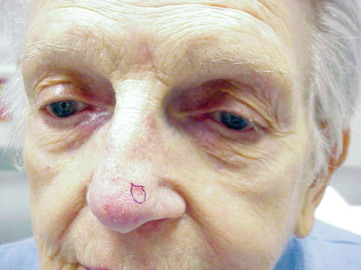 Preoperative photograph showing the original basal cell carcinoma.