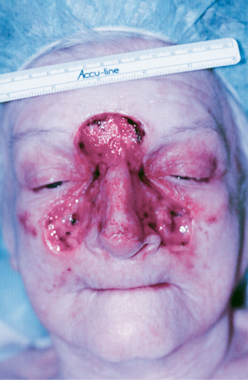 Preoperative photograph showing the large centrofacial defect after MMS.