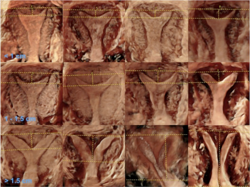 Septate uterus by ESHRE–ESGE includes three morphological classes by ASRM; Top row, norm (internal indentation <1 cm); middle row, arcuate; and bottom row, septate uterus.