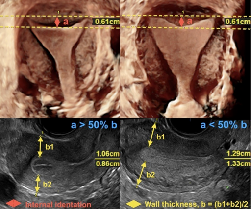 Normal uterus by ASRM with the same length of internal fundal indentation in coronal view (top row); may be recognized paradoxically by ESHRE-ESGE as a septate (case on left) or normal uterus (case on right) depending on the thickness of the uterine wall in the sagittal view (bottom row).