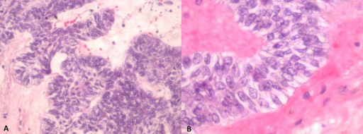 (A) Ameloblastoma with tumor cells exhibiting a plexiform growth pattern. (B) Ameloblastic tumour cells exhibiting characteristic reverse nuclear polarization and subnuclear vacuolation of the cytoplasm.