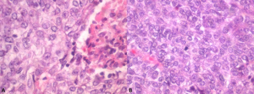 (A) Ameloblastic carcinoma with area of necrosis. (B) Ameloblastic carcinoma with tumor cells exhibiting crowding, nuclear pleomorphism, and mitotic activity.