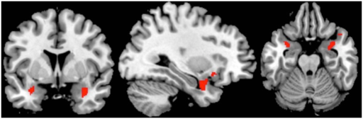 Coronal, sagittal and axial view depicting activation extension of one example contrast; supra-threshold voxels are shown in red. Region of interest (ROI)-analysis with trait anxiety as a covariate for the bilateral amygdala; contrast 1: Explicitly learned pseudowords > novel pseudo words (x = 32, y = 5, z = -21).