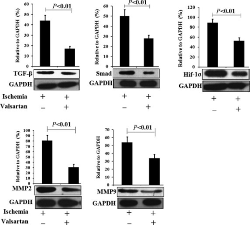 Influence of valsartan on myocardial expression of TGF-1β/Smad, Hif-1α and fibrosis-related proteins 1 week after MI. Compared with animals of MI, administering valsartan significantly decreased the expression of TGF-1β/Smad, Hif-1α and fibrosis-related proteins (MMP-2 and MMP-9) which were up-regulated after MI. Ischaemia indicates animals with MI and receiving saline treatment. Valsartan indicates animals receiving valsartan treatment (n = 5).