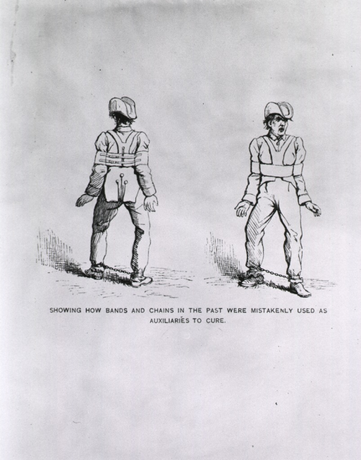 <p>Front and back view of a man wearing a shoulder harness to immobilize his arms, and with his ankles shackled.</p>