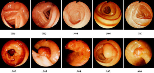 the selected colonoscopic images of normal n01 n02 n open i
