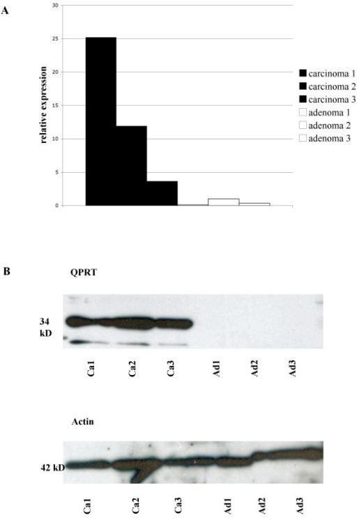 qRT-PCR (A) and western blot analysis (B) of the 3 FTA and FTC presented in figure 2. In qRT-PCR, carcinomas reveal a relative quantity of QPRT-RNA expression between 3,65 and 25,18. The relative quantity of QPRT-RNA expression in adenomas is between 0,13 and 1,00. In western blot analysis, FTC reveal a strong band at 34 kD, while follicular adenomas lack any band. Blotting with actin was performed as loading control. Ad: Adenoma; Ca: Carcinoma.