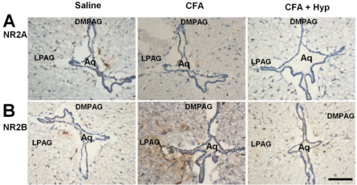 Immunostaining of NMDA receptors in PAG. Immunostaining was performed in the coronal midbrain slices containing the PAG. (A) Expression of NR2A in saline control, CFA, and CFA + Hyp treated mice. (B) Expression of NR2B in saline control, CFA, and CFA + Hyp treated mice. Scalebar (in B): A, B, 500 μM. DMPAG: Dorsomed periaqueductal gray; LPAG: Lateral periaqueductal gray.