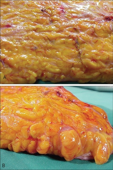 (A) Subcutaneous Fat, (B) Turgid Fat after Tumescent In ...