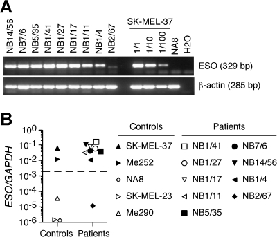 Assessment of ESO expression in BC tumors from ESO Ab+ patients.ESO expression in cryopreserved BC tumors from ESO Ab+ patients was assessed by semi-quantitative PCR (A) and qPCR (B) using specific primers and ESO+ (SK-MEL-37, Me252) and ESO− (NA8, SK-MEL-23, Me290) tumor cell lines as internal controls.