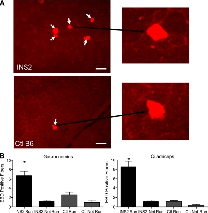 "Exercised-induced myocyte disruptions are not repaired in diabetic mice. A: Paired transmission and fluorescence micrographs showing EBD-labeled myofibers (arrows) in the gastrocnemius muscle from diabetic (INS2) and control (Ctl) (B6) mice that run downhill for 60 min and then are injected with the EBD tracer. Myocytes that were injured by running and failed to repair are labeled. B: The number of EBD myofibers counted from such micrographs in the gastrocnemius and quadriceps muscles of diabetic INS2 and control B6 mice. Data are presented as the mean ± SEM. *P < 0.05; n = 5 mice for the ""Run"" groups and 4 mice for the ""Not Run"" groups. Scale bar, 100 μm and 20× magnification. (A high-quality digital representation of this figure is available in the online issue.)"