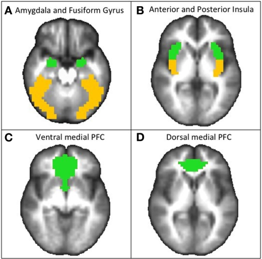Regions of interest masks used for fMRI analyses, shown from axial views.(A) bilateral amygdala (green) and fusiform gyrus (yellow) (shown at z = −20), (B) bilateral anterior (green) and posterior (yellow) insula (shown at z = 2), (C) ventral medial prefrontal cortex (PFC; shown at z = −6), and (D) dorsal medial PFC (shown at z = 4). These anatomical regions were defined using Talairach Atlas [Lancaster et al. (2000)].