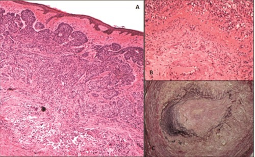 A) Basal cell carcinoma (Hematoxylin and Eosin, 40×); B) giant-cell arteritis (Hematoxylin and Eosin, 100×); C) giant-cell arteritis (Elastic Van-Gieson, 100×).