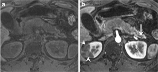 A 56-year-old man with secondary pancreatic lymphoma. a Fat-suppressed T1-weighted image shows diffuse pancreatic swelling and homogeneously hypointense pancreas. Atrophic pancreatic and residual normal pancreatic parenchyma of the tail are seen. b Pancreatic phase of dynamic contrast-enhanced MR image shows poorly enhanced pancreas head and body. Distal main pancreatic duct dilatation (white arrow) and enhanced normal pancreatic parenchyma are seen. Poorly enhanced right renal lesion (white arrowheads) is also seen