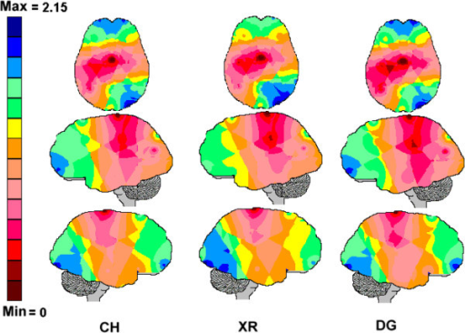 The entropy brain maps associated with the clinical history reading (CH), X-ray analysis (XR) and diagnosis decision-making (DG). The normalized entropy values obtained for each electrode were color coded such that the dark-blue areas were associated with the highest entropy values and the dark-red areas were associated with the lowest entropy values.