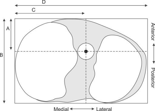 Illustration of the method of Tsukada et al.12). The central point of the tibial tunnel from the anterior edge and medial edge of the tibial plateau was calculated as A/B and C/D. A: anterior tangential line, B: lateral tangential line, C: medial tangential line, D: posterior tangential line.