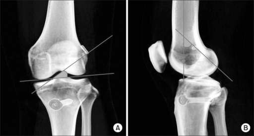 (A) Coronal obliquity was measured as the angle between the femoral tunnel and a line tangent to the lateral tibial plateau. (B) Sagittal obliquity was measured as the angle between the femoral tunnel and the longitudinal axis of the femur.
