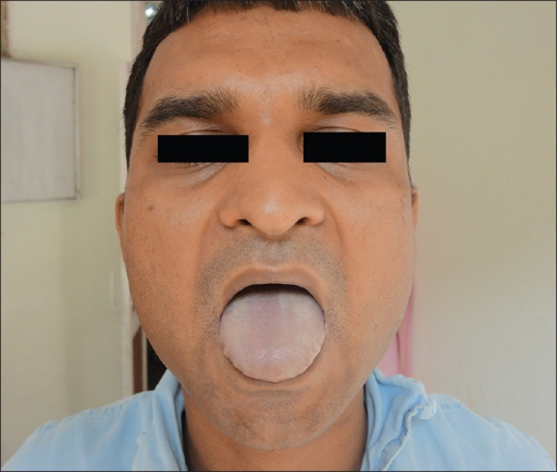 Central cyanosis at presentation