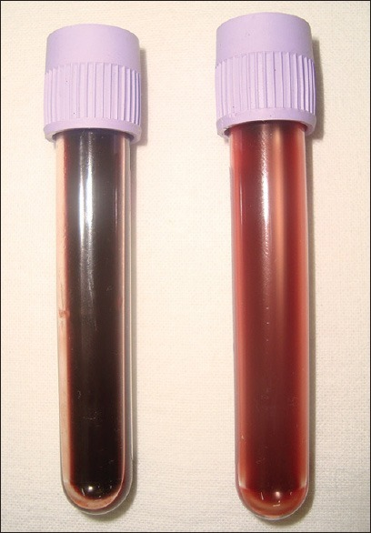 Normalization of venous blood color after 2 weeks