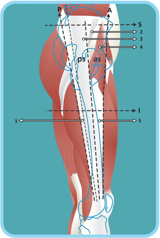 1, Tendon fibers of the gluteus maximus. 2, Aponeurosis of the gluteus medius. 3, Iliotibial tract. 4, Tensor fasciae latae. 5, Tendon fibers of the tensor fasciae latae. as, The anterior surface of the musculoaponeurotic area of the hip. ps, The posterior surface of the musculoaponeurotic area of the hip. A, The anterior line of the musculoaponeurotic area of the hip. P, The posterior line of the musculoaponeurotic area of the hip. S, The superior line of the musculoaponeurotic area of the hip. I, The inferior line of the musculoaponeurotic area of the hip.
