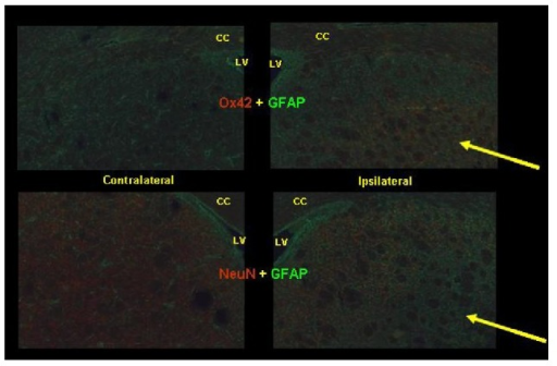 Immunohistochemistry for glial fibrillary acidic protein (GFAP, green) and anti-CD11b antibody (Ox42) or neuron-specific nuclear protein (NeuN, both red). The arrows indicate a region identified as the excitotoxic lesion, with increased Ox42 staining and decreased NeuN staining indicating microglial activation and neurodegeneration, respectively. LV = lateral ventricle, CC = corpus callosum.