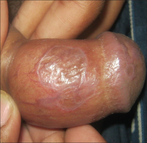 Lichen planus-violaceous annular plaques over glans penis