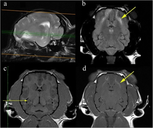 Representative MRI from a 2.95 kg 5 year female entire Chihuahua dog that underwent a diagnostic investigation for cluster seizures. a Parasagittal image demonstrating the hippocampus and the planned imaging perpendicular to the long axis (b) Dorsal FLAIR images orientated perpendicular to long axis of the hippocampus demonstrating hyperintensity in the frontal lobe (short arrow). Although this protocol is optimised for detection of hippocampal lesions visualisation of other pathology is not compromised. c Dorsal T1W 3D images 1 mm slice thickness orientated perpendicular to long axis of the hippocampus. The scrolled structure of the hippocampus is clearly defined despite the small patient size. Furthermore the demarcation between white and grey matter can be appreciated (long arrow). d Post gadolinium T1W images are obtained in further investigation of the frontal lobe pathology. The patient was diagnosed subsequently with necrotising encephalitis. Images obtained in a 1.5 T MRI (Siemens Symphony, Erlangen, Germany)