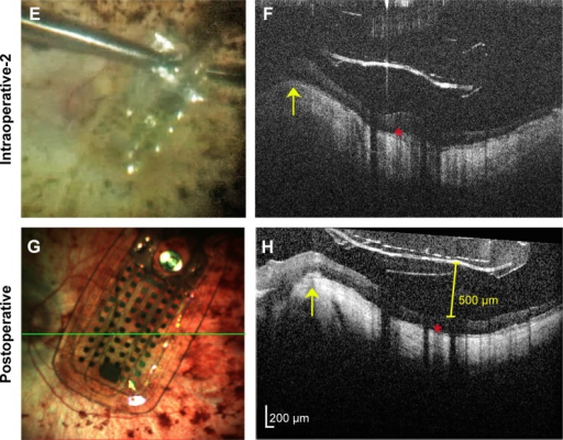 Argus II prosthesis repositioning.Notes: (A) Preoperative color fundus photo of the left eye of a 66-year-old man with end-stage retinitis pigmentosa. (B) Preoperative spectral-domain optical coherence tomography (OCT) image showing sloping of the eye wall consistent with a posterior staphyloma. The elevated edge of the staphyloma (yellow arrow) and sub-retinal hyper-reflective material (red asterisk) are also in subsequent OCT images (D, F, and H) as landmarks showing similar scan locations. Note that all OCT images are shown in the standard format with elongated axial dimensions that exaggerate the distance between the prosthesis and the retinal surface. (C) Intrasurgical video-still image showing array malrotation over the optic nerve. (D) Intraoperative hand-held spectral-domain OCT image captured just after the moment in surgery imaged in (C), showing the array propped-up by the edge of the staphyloma. (E) Intrasurgical video-still image after array unrotation showing optimal positioning in the macula. (F) Intraoperative hand-held spectral-domain OCT captured just after the moment in surgery imaged in (E), showing the array free from the staphyloma edge. (G) Color scanning laser ophthalmoscopy image captured 3 months after surgery showing sustained optimal array positioning. The green line represents the OCT scan location shown in (H). (H) Spectral-domain OCT image 3 months after surgery confirming the array remains free from the staphyloma edge. The array does not fully contact the retina, and maximal distance between the array and retinal surface measures 500 µm (yellow calipers).