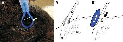 Intermittent ocular hypertension: Induction of short-term elevated intraocular pressure. a Eyes of anesthetized Long Evans rats were injured by inducing elevated intraocular pressure levels using a silicone loop around the bulb for 1 h per day for 27 treatments. The loop is attached very gently around the eye without modifying the shape of the eye (white arrow) and held in place using a stand. Eyes were kept moist during the time of the experiment. Left eyes served as fellow control eyes. b A schematic of the anatomic details of a rodent eye without (b) and with the loop attached (b'). The loop slightly compresses Schlemm's canal (SC) as well as the episcleral veins (in lighter gray) and provokes a marginal relocation of the iridocorneal angle (indicated by the arrow), resulting in an increase of aqueous humor outflow resistance. Abbreviations: C cornea, I iris, CB ciliary body, S sclera