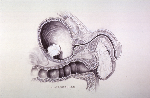 <p>Illustration showing a cyst(?) on inner lining of the bladder.</p>