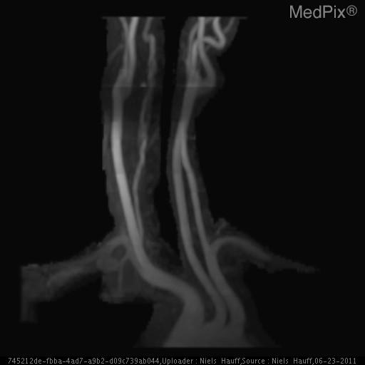 Coronal oblique MIP of contrast enhanced MRA demonstrating asymmetric narrowed lumen of right vertebral artery with irregular contour.
