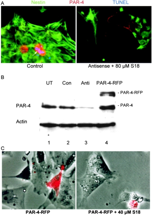 Alteration of neural stem cell apoptosis by antisense knockdown or overexpression of PAR-4. (A) Differentiating ES cells at the NP1 stage were transfected with a morpholino phosphorodiamidate antisense oligonucleotide against PAR-4, and 48 h later (NP3 stage), were incubated overnight with 80 μM S18. The figure shows PAR-4 (red), nestin (green), and TUNEL (blue) staining of cells transfected with standard control antisense oligonucleotide (left), and cells transfected with PAR-4–specific antisense oligonucleotide followed by incubation with S18 (right). (B) Staining of PAR-4 on immunoblots of protein from differentiating ES cells (NP3 stage) that were transfected with or without PAR-4–specific antisense oligonucleotide or PAR-4-RFP, respectively. Lane 1, untransfected (UT) NP cells; lane 2, NP cells transfected with standard control antisense oligonucleotide (Con); lane 3, NP cells transfected with PAR-4–specific antisense oligonucleotide (Anti); lane 4, NP cells transfected with PAR-4-RFP. (C) In differentiating ES cells at the EB8 stage, inhibition of ceramide biosynthesis was initiated by incubation with 50 nM myriocin, and was then maintained throughout the subsequent differentiation stages. After NP expansion (NP1 stage), cells were transfected with PAR-4-RFP, and 48 h later (NP3 stage), were incubated overnight with 80 μM S18 (right). The figure shows phase contrast and overlay with RFP (red) fluorescence. Arrow in A indicates apoptotic cells.