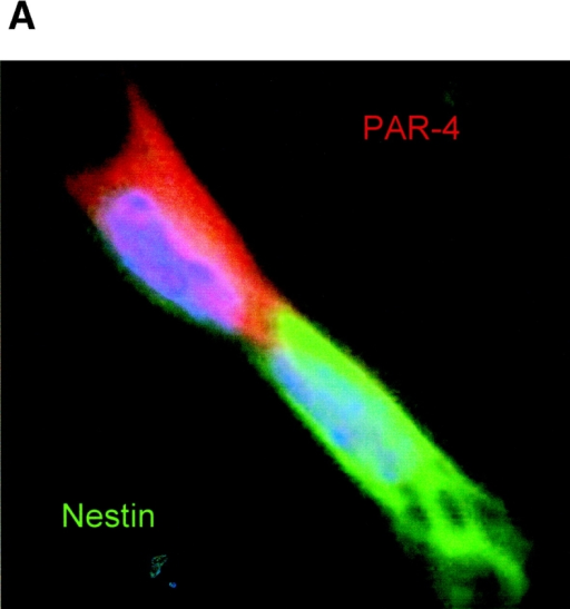 Distribution of PAR-4 and nestin during cell division of ES-J1 ES cells at NP2 stage of differentiation. Multiple, indirect immunofluorescence staining of differentiating ES-J1 cells 48 h on replating of EB8 cells (NP2 stage). PAR-4, (Alexa® 546, red); nestin, (Alexa® 488, green); Hoechst (blue). (A) Mitotic cell in anaphase/telophase, overlay of PAR-4, nestin, and Hoechst staining. Note the strict asymmetric distribution of PAR-4 and nestin. (B) Cluster of neuroprogenitor cells, overlay of PAR-4, nestin, and Hoechst staining. Arrowheads indicate two apoptotic PAR-4–positive cells that did not show any expression of nestin.