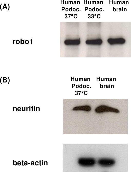 Western Blot analysis of robo1 (A) and neuritin (B) in human podocytes.For robo1 (A) and neuritin (nrn1) (B), a band of the expected size was found in a human podocyte cell line; human brain lysate served as a positive control. Beta-actin was used as an internal loading control.
