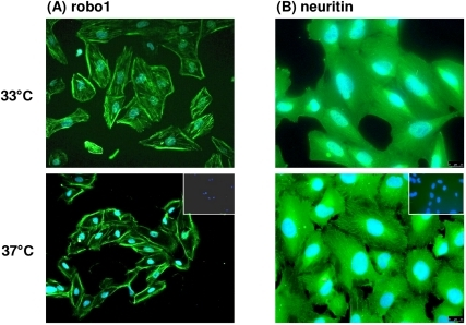 Immunofluorescence of robo1 (A) and neuritin (B) in human podocytes.In undifferentiated, immortalized podocytes (33°C) the expression of robo1 seemed to be more cytoskeletal, while in differentiated cells (37°C) a more intensive staining as well as a more pronounced staining at the cell border was found. For neuritin a cytoskeletal staining pattern could be observed in undifferentiated and differentiated cells with in the latter pronounced staining of stress fibers.