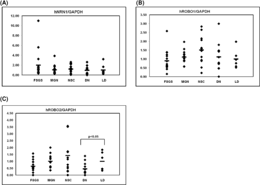 Glomerular mRNA expression of NRN1, ROBO1 and 2 mRNA in human DN, NSC, FSGS and MGN.Levels of mRNA for NRN1 (A), ROBO1 (B) and ROBO2 (C) were quantified in microdissected glomeruli from controls (n = 8), patients with established DN (DN, n = 14), NSC (n = 14), FSGS (FSGS, n = 17) and from patients with MGN (n = 17). ROBO2 was significantly down-regulated in diabetic nephropathy compared to control samples as indicated by the respective p-value, while ROBO1 and NRN1 showed no regulation. The graphs show expression ratios of each gene normalized to hGAPDH.