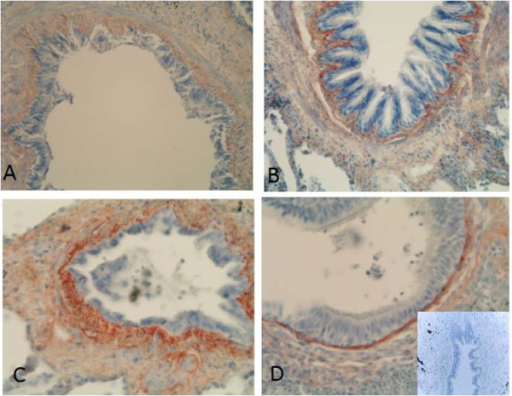 Immunohistochemical staining for precursor protein of collagen III in small airways of a non-smoker (A), a smoker (B), a patient with stage I COPD (C) and a patient with stage IV COPD (D). showing increased expression of precursor protein of collagen III in small airways of smokers and stage I-II COPD, and decreased expression in stage IV COPD.