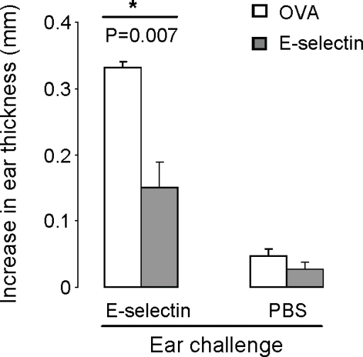 Intranasal delivery of E-selectin reduces swelling in a delayed type hypersensitivity reaction.9 week old mice underwent one round (consisting of five intranasal administrations every other day) of 10 µl PBS containing either 5 µg OVA (white bars) or E-selectin (black bars). After sensitization and subsequent challenge with E-selectin, responses to E-selectin were significantly reduced in animals previously receiving E-selectin versus those receiving OVA intranasally (P = 0.007). Swelling was not significantly different in the ears challenged only with PBS between the two treatment groups. N = 5 mice per group, error bars represent SEM.