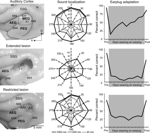 Lesions of auditory cortex impair sound localization and training-induced plasticity. Left column shows the extent of the auditory cortical lesions in different animals. The top panel shows the main subdivisions superimposed over the auditory cortex on a ferret brain. The middle panel shows an extended lesion that comprised the whole cortical thickness, including the white matter and most of the auditory cortex. The bottom panel shows a restricted lesion affecting only the primary auditory cortex (A1) while preserving the underlying white matter. The plots in the middle column show the percentage of correct responses in a 12-speaker approach-to-target task (see Fig. 2A) at 3 different sound durations (1000, 200 and 40 ms). When short duration sounds were used, control ferrets exhibited reduced spatial accuracy at lateral and posterior positions compared with anterior positions (top panel). A1 lesions degraded the accuracy with which brief sounds were localized, without affecting performance at longer durations (bottom panel), whereas larger deficits, affecting performance at all sound durations tested, were observed following extensive lesions of the auditory cortex (middle panel). The right column shows the ability of the animals to adapt to the altered spatial cues produced by plugging one ear. The top panel shows data from a control ferret: after an initial fall in the percentage of correct scores following earplug insertion, the animal's performance gradually recovered with training to almost reach pre-plug levels. This training-induced plasticity depends on the integrity of the auditory cortex as no improvement in performance was observed in animals with cortical lesions, even if the region aspirated was restricted to A1 (middle and bottom panels). Abbreviations: as, ansinate sulcus; A1, primary auditory cortex; AAF, anterior auditory field; AEG, anterior ectosylvian gyrus; ls, lateral sulcus; LV, lateral ventricle; MEG, middle ectosylvian gyrus; PEG, posterior ectosylvian gyrus; pss, pseudosylvian sulcus; SSG, suprasylvian gyrus; sss, suprasylvian sulcus.