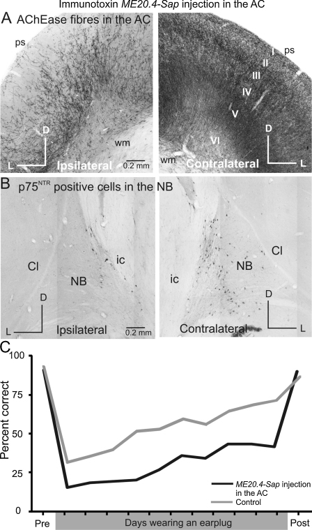 Loss of cholinergic input from the nucleus basalis to the auditory cortex appears to disrupt learning-induced plasticity. The number of AChEase fibers in the auditory cortex (A) and of the low affinity neurotrophin receptor (p75NTR) positive cells in the nucleus basalis (B) was significantly lower following injections of the immunotoxin ME20.4-SAP in the ipsilateral auditory cortex. ME20.4-SAP comprises a monoclonal antibody specific for the p75NTR membrane-bound receptor, conjugated to saporin, a ribosome-inactivating enzyme. Once bound to the external cell membrane, the saporin toxin is internalized and prevents protein synthesis, resulting in neuronal cell death. The p75NTR receptor is primarily expressed by the cholinergic cells of the basal forebrain and, after being injected into the auditory cortex, ME20.4-SAP is taken up only by cortical cholinergic afferents. (C) The ability to adapt to altered spatial cues caused by the monaural insertion of an earplug was reduced in ferrets in which cholinergic innervation to the cortex had been compromised by this method. Abbreviations: I to VI, layers of the cortex; Cl, claustrum; D, dorsal; ic, internal capsule; L, lateral; NB, nucleus basalis; ps, pial surface; wm, white matter.