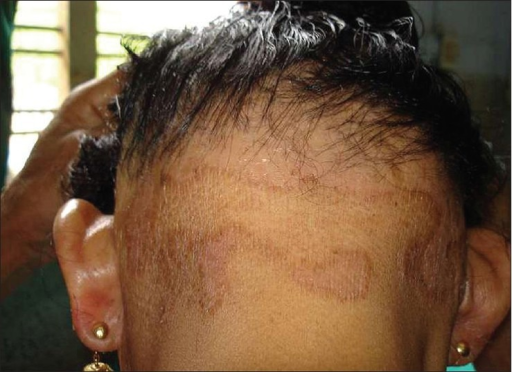 annular, erythematous, and scaly patches over the nape | open-i, Cephalic Vein