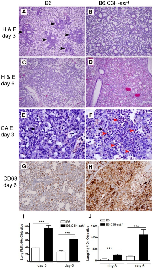 C. pneumoniae infected B6.C3H-sst1 mice develop diffuse lung inflammation compared to B6 mice.C57BL/6 (B6) or B6.C3H-sst1 congenic mice were infected with C. pneumoniae as described in the Methods. At day 3 and day 6 post infection, mice were euthanized and lungs removed for histologic analysis. A–D: routine H & E staining for day 3 (A–B) and day 6 (C–D). Black arrow heads indicate areas of patchy inflammatory infiltrate. E–F: CAE staining for detection of neutrophils, indicated by red arrow heads. G–H: immunohistochemistry for the macrophage marker CD68, shown by brown staining. Graphs at the bottom represent quantified data from (I) neutrophil images E–F and (J) macrophage images G–H. Original magnification: A–D, 40×; E–F, 400×; G–H, 100×. Shown above are images from one of four infected mice from each genetic background. The result is a representative of two independent experiments. ***, p≤0.001.