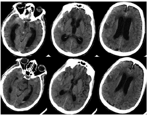 Upper images: obstructive hydrocephalus with dilated an ...