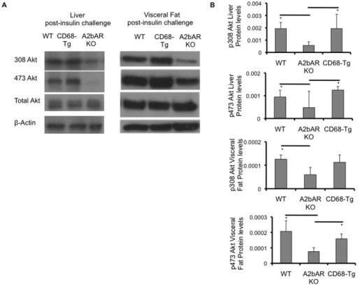 Effect of CD68-driven expression of A2bAR on tissue insulin signaling.Western blot analysis of liver and visceral fat derived from matching WT, CD68-Tg and A2bAR KO mice post 16 weeks of HFD and 15 minutes following insulin injection. A. Levels of phospho-308 Akt (p308 Akt, 60 kDa), phospho-473 Akt (p473 Akt, 60 kDa), and total Akt (60 kDa) were probed by Western blot analysis, using β-actin (43 kDa) as loading control. Shown are representative out of 3 sets. B. Quantification of Western Blot results was performed with Image J software (http://rsb.info.nih.gov/ij/). Protein levels were normalized to total Akt and β-actin. Data are averages ± SD. *Student two-tail t-test assuming equal variance was found significant only when p<0.05. WT to A2bAR KO: Liver p308 Akt p-value  = 0.0007, p473 Akt p-value  = 0.0219; Visceral fat: p308 Akt p-value  = 0.0340, p473 Akt p-value  = 0.0395; CD68-Tg to A2bAR KO: Liver p308 Akt p-value  = 0.0327, p473 Akt p-value  = 0.0349; Visceral fat: p308 Akt p-value  = 0.1054; p473 Akt p-value  = 0.0221.