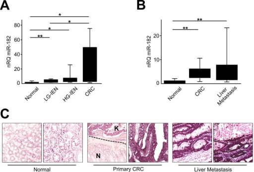 miR-182 is up-regulated during colon carcinogenesis(A) miR-182 expression was evaluated by qRT-PCR after RNA extraction from FFPE samples of colon normal mucosa, LG-IEN, HG-IEN lesions and CRCs. (B) miR-182 expression was evaluated by qRT-PCR in matched surgical samples of normal colon mucosa, primary CRC and liver metastatis. (C) Representative ISH evaluation of miR-182 in matched tissue sections of normal colon, primary tumor and metastatic CRC (N= normal colon mucosa; K= primary CRC). The presence of miR-182 is shown by a grainy blue cytoplasmic stain; slides counterstained in fast red. (Original magnifications 10x and 20x). Significance (Student's t test); *p<0.05; **p<0.01. nRQ, normalized Relative Quantity. Data were expressed as mean values ± SD.