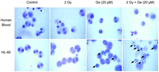 Ge and γ-radiation-induced morphological alterations between human promyeloid leukemia HL-60 cells and normal human lymphocytes. Arrows indicate separated apoptotic cells (apoptotic bodies) Ge, Genistein.