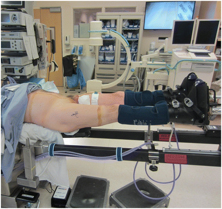 Supine patient positioning on the hana® table with the ...